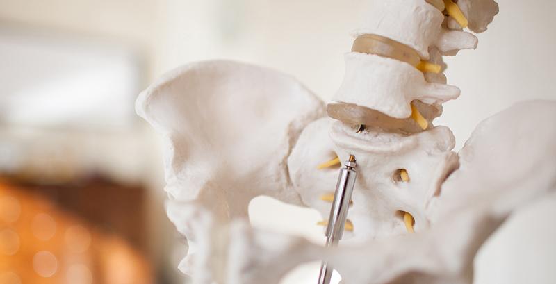 Arthritis NI - Bone